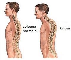 Cifoza posturala