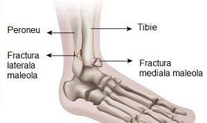 fractura de picior