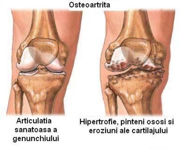 Osteoartrita genunchi