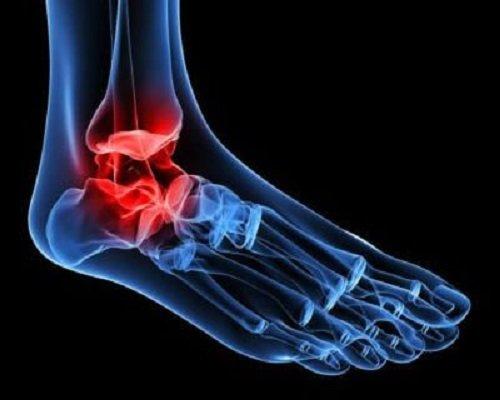 Osteoartrita kinetoterapie