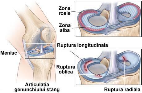 ruptura de menisc