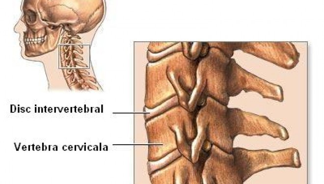 Spondiloza cervicala